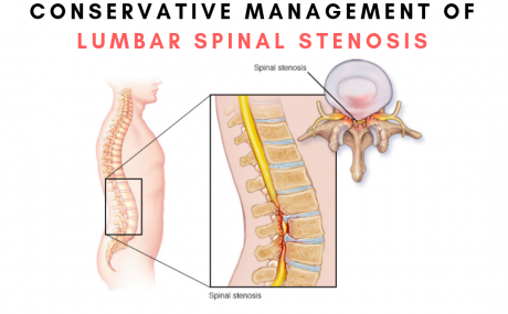 Conservative management of lumbar spinal stenosis